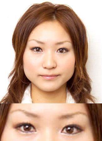 涙袋のヒアルロン酸注入の症例写真2(術前)