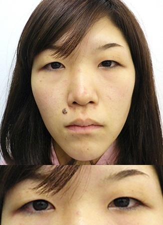涙袋のヒアルロン酸注入の症例写真3(術前)