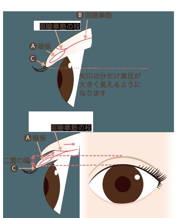 二重の仕組み図