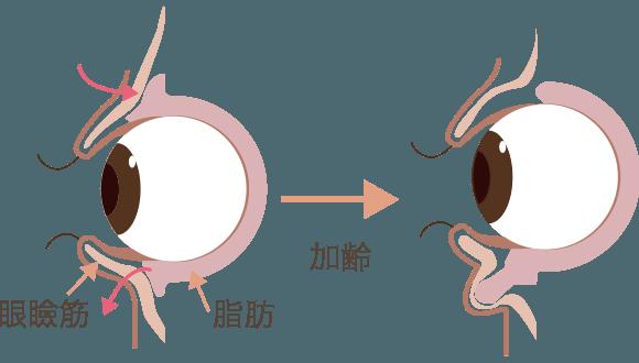 加齢により眼球周りの脂肪が下がってきた図