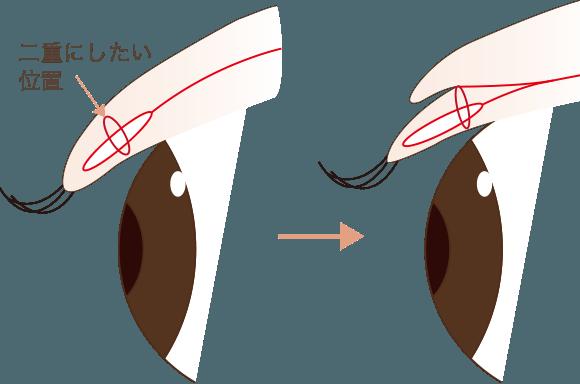 埋没法の手術方法