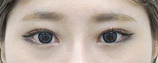 二重切開の術前から3ヶ月目までの経過写真2(メイク有)術前