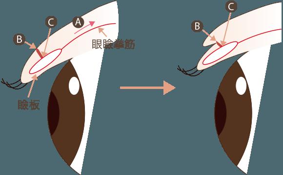 切開法による二重の仕組み