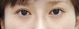 たれ目形成の症例写真(術後)