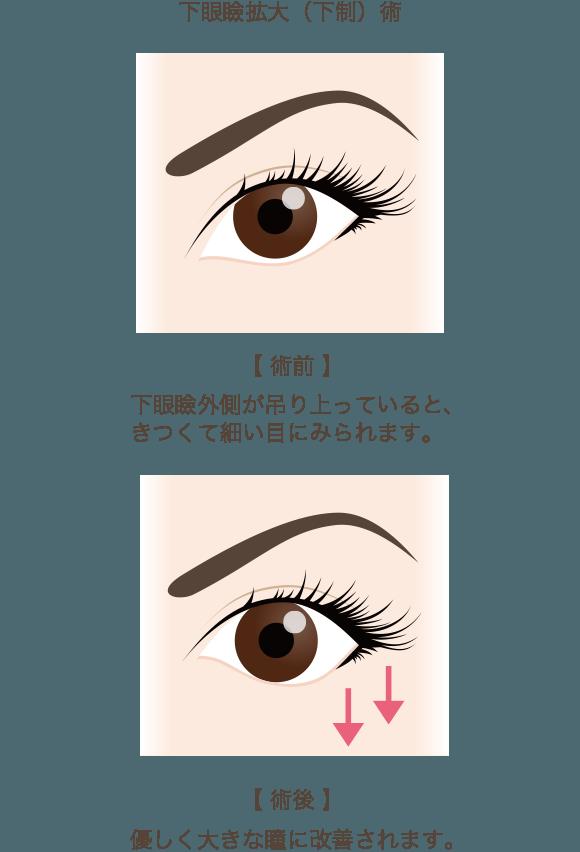 下眼瞼下制術(たれ目形成)の手術方法