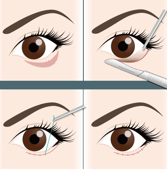 たれ目形成の手術方法をさらに詳しく解説1