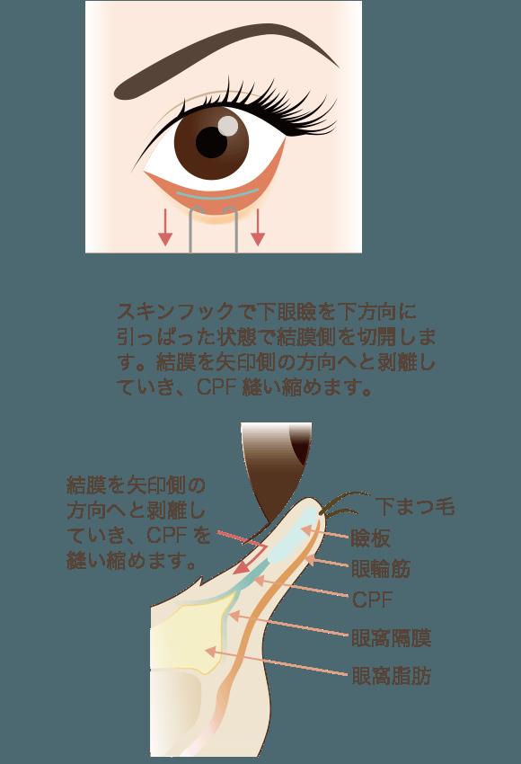 たれ目形成の手術方法をさらに詳しく解説2