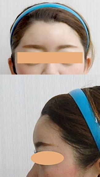 額のヒアルロン酸after②