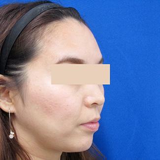 額のヒアルロン酸after④