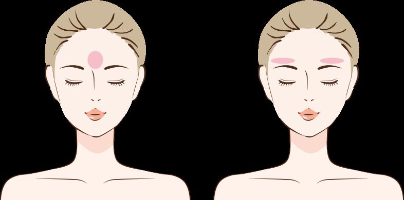 額の中央、眉上の凹みへの注入
