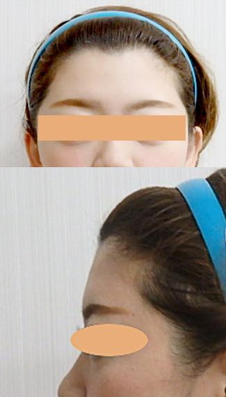 額のヒアルロン酸before②
