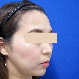 額のヒアルロン酸before④