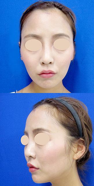 額のヒアルロン酸 before⑥