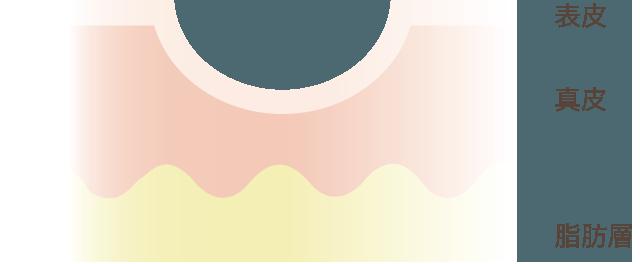コラーゲン現象による凹み