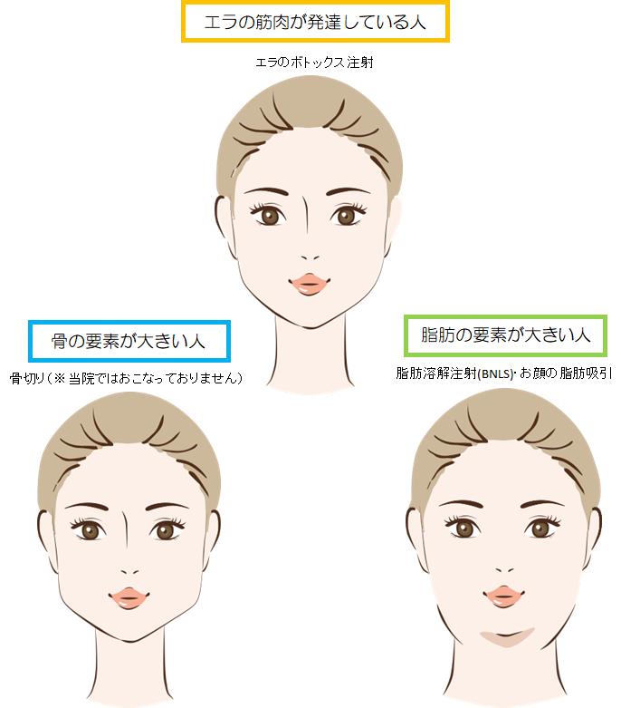 ボトックスエラ口コミ エラボトックスの効果的な打ち方や副作用・失敗について徹底解説 東京新宿の美容整形ならもとび美容外科クリニック