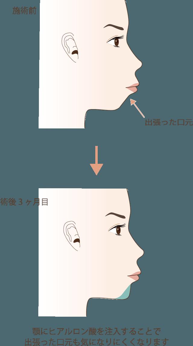 顎のヒアルロン酸注入の効果3