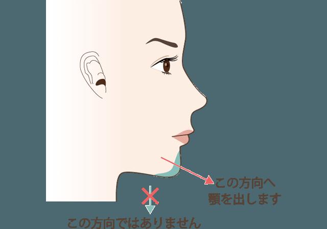 顎のヒアルロン酸の注意点