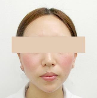 顎のヒアルロン酸注入の症例(術後)
