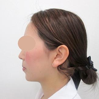 顎のヒアルロン酸注入の症例(術後)横向き