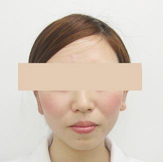 顎のヒアルロン酸注入の症例(術前)