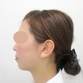 顎のヒアルロン酸注入の症例(術前)横向き