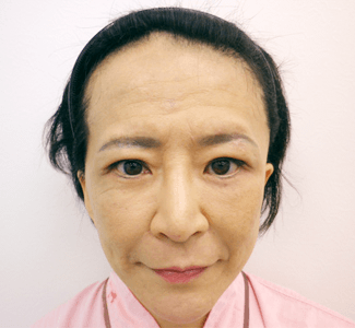 顎のヒアルロン酸注入(正面)の症例写真(術後)