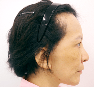 顎のヒアルロン酸注入(横)の症例写真(術後)