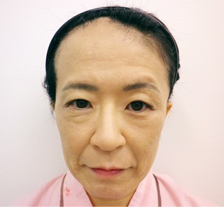 顎のヒアルロン酸注入(正面)の症例写真(術前)