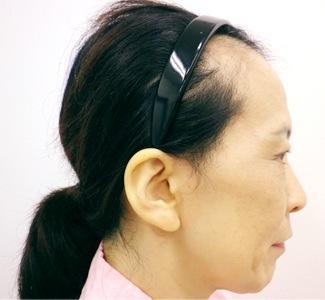 顎のヒアルロン酸注入(横)の症例写真(術前)