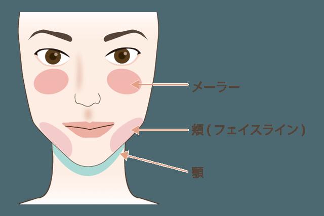 頬・顎の脂肪吸引について解説図