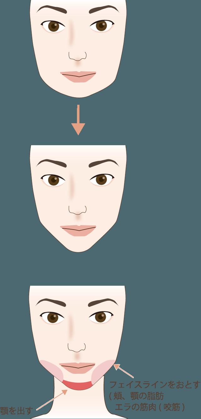 小顔=逆三角形の輪郭の説明図