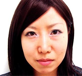 頬・顎脂肪吸引とエラのボトックスの症例写真(術後1ヶ月目)