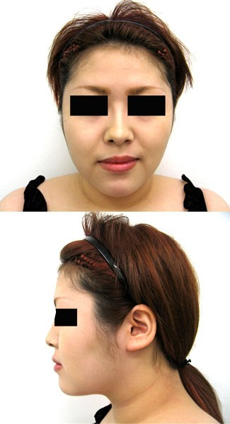 頬・顎脂肪吸引と顎のプロテーゼの症例写真(術後)