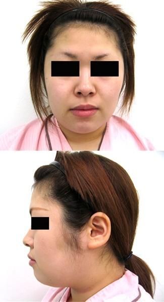 頬・顎脂肪吸引と顎のプロテーゼの症例写真(術前)