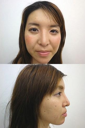 顎のプロテーゼの症例写真2(術後)