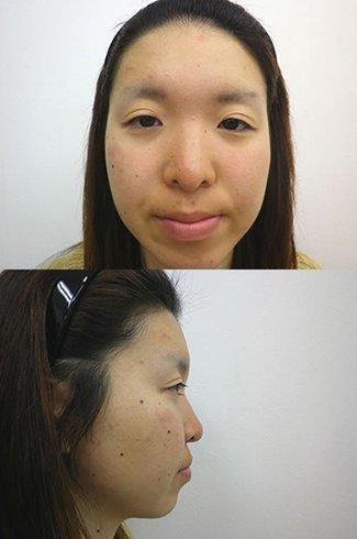 顎のプロテーゼの症例写真2(術前)