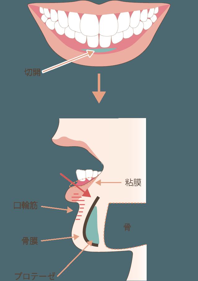顎プロテーゼ(下顎形成)の手術方法
