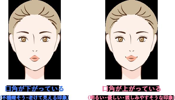 口角のボトックスの特徴(口角が下がっている・口角が上がっている印象)