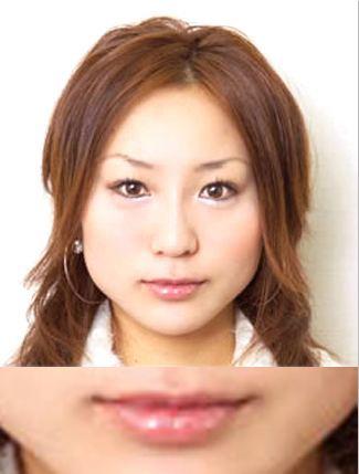 唇のヒアルロン酸注入の症例(術後)