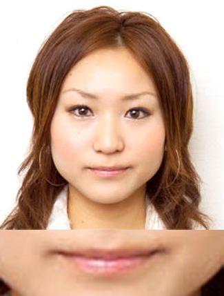 唇のヒアルロン酸注入の症例(術前)