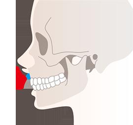 ガミースマイルの原因1(筋肉が原因の場合)