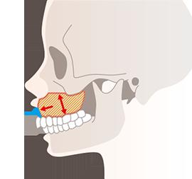 ガミースマイルの原因2(骨が原因の場合)