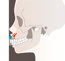 ガミースマイルの原因3(歯が原因の場合)