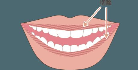 唇を薄くするの手術方法