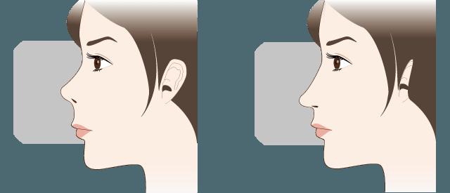 鼻中隔延長術の特徴