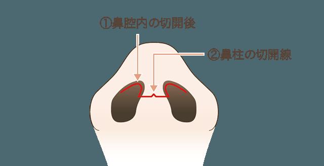 鼻中隔延長術の手術方法1