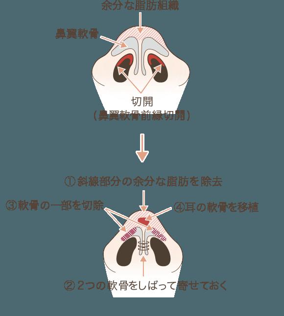 鼻尖の解剖と手術方法