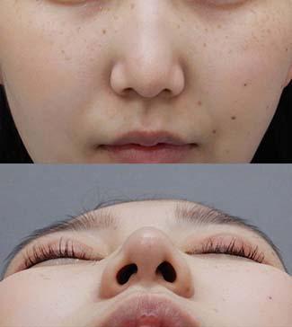 鼻尖縮小の症例写真2(術後)