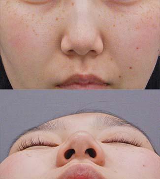 鼻尖縮小の症例写真2(術前)