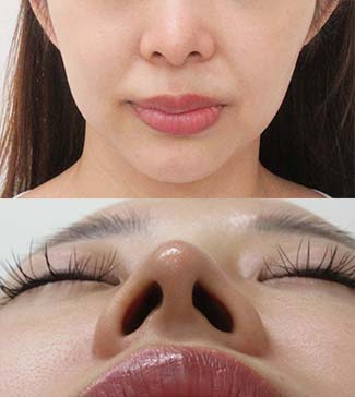 鼻尖縮小の症例写真3(術後)